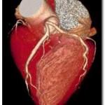 RM Cardiovascular