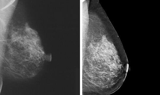 Mamografía y tomosintesis 3D