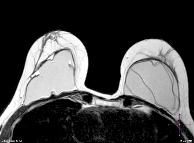 Resonancia magnética de mama