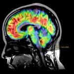 resonancia magnetica cerebro dei 3D ASL