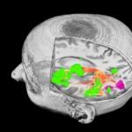 resonancia magnetica cerebro