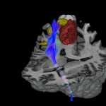 resonancia magnética perfusión