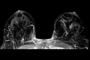 Resonancia Magnética de Seno