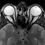 resonancias magnéticas cabeza y cuello