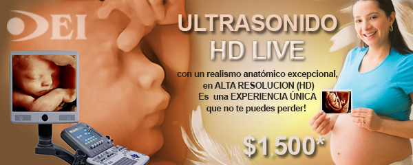 Ultrasonido HD live 4d, 3d