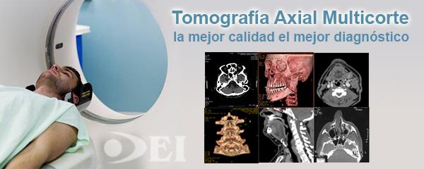 TAC tomografía