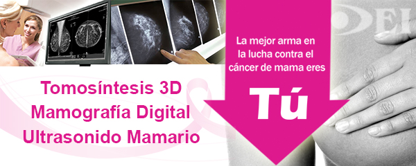 Tomosintesis 3d