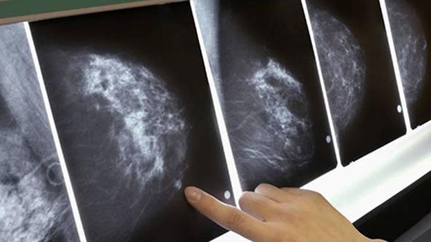 Los resultados de la mamografía