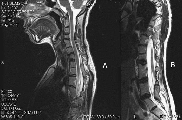 Resonancia magnética columna cervical en niños
