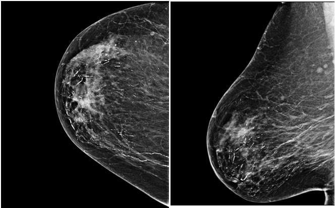 Cáncer de mama bilateral