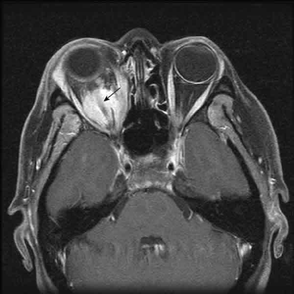 Inflamación del Nervio Óptico (Papiledema)