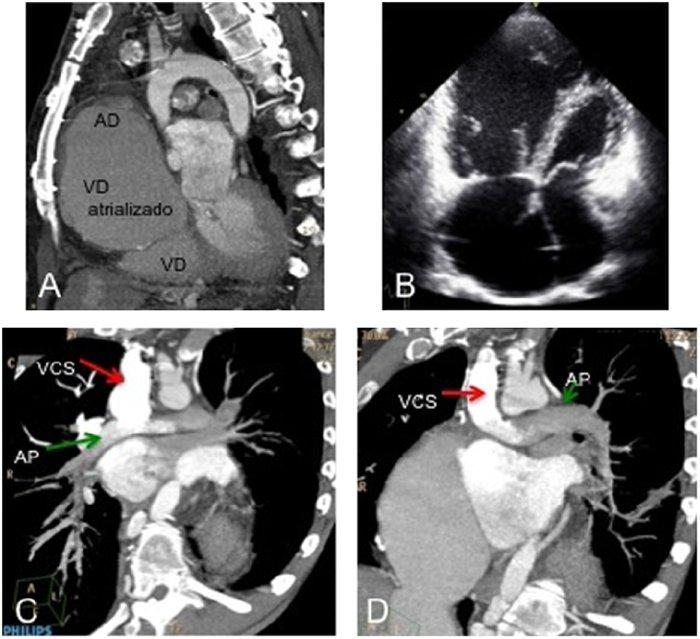 Reemplazo de la válvula cardíaca