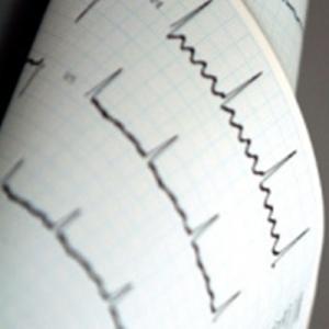 Estudios de cardiología