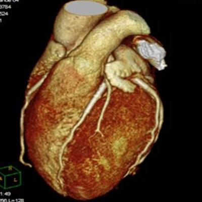 Resonancia magnética de corazón