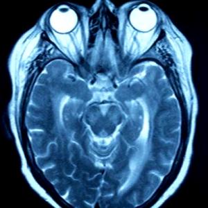 Tomografía multicorte cráneo
