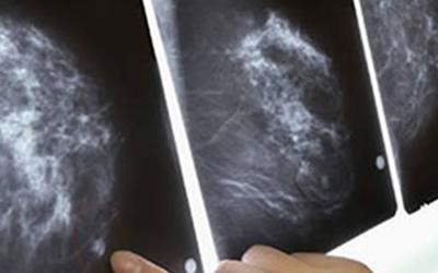 Tomosíntesis y Mamografía