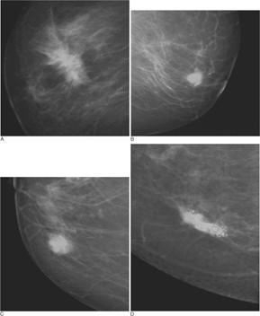 Tipos de cáncer de mama
