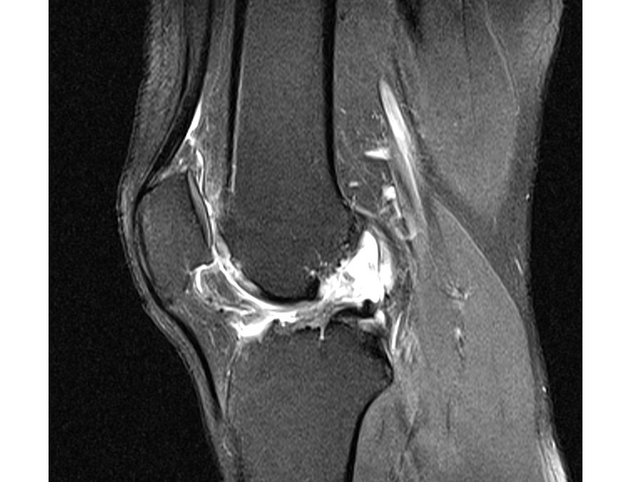 Lesiones del Ligamento Cruzado Anterior (LCA)