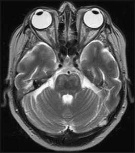 Lesiones de la cabeza