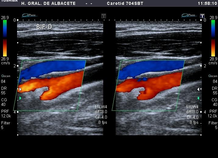 ultrasonido de la arteria carótida