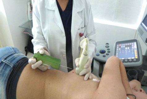 Biopsia de mama guiada por ultrasonido