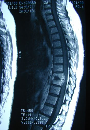 Absceso de la médula espinal