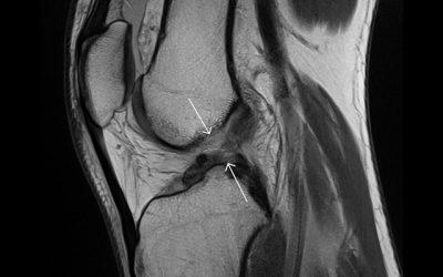 Lesión del ligamento cruzado anterior
