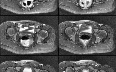 Qué es una resonancia magnética de pelvis