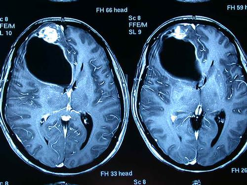 Diagnóstico de Derrame Cerebral