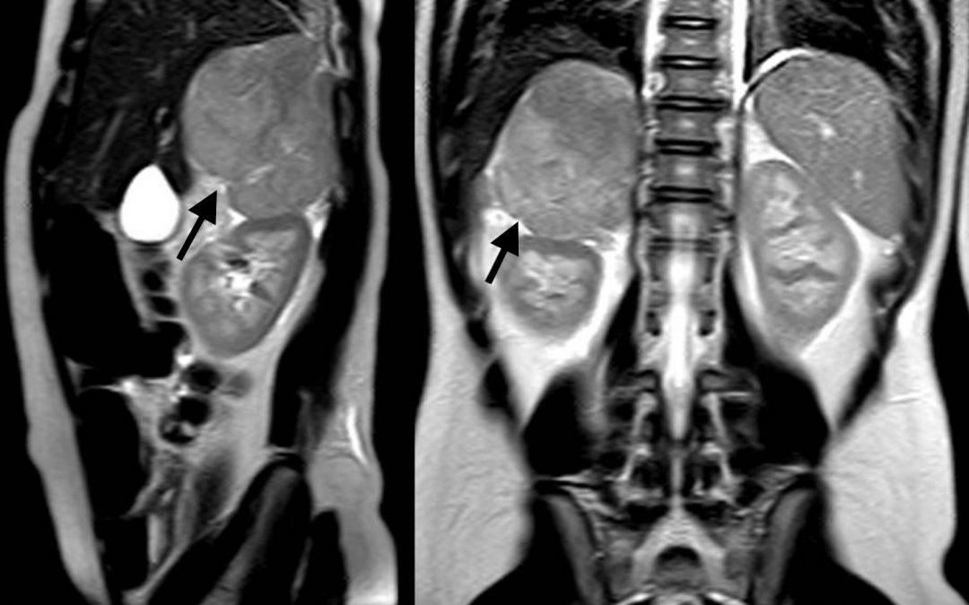 Adenoma suprarrenal Diagnóstico